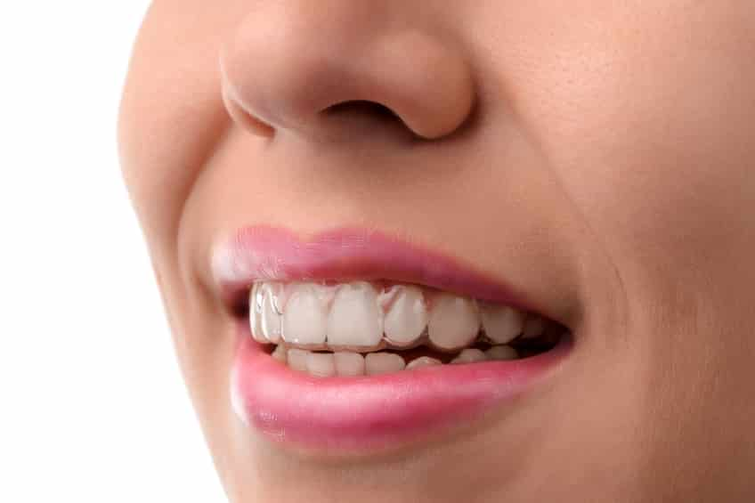 How Veneers Can Make Your Smile Even More Beautiful