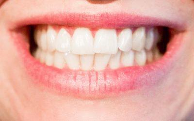 The Benefits of CEREC: Same-Day Crowns